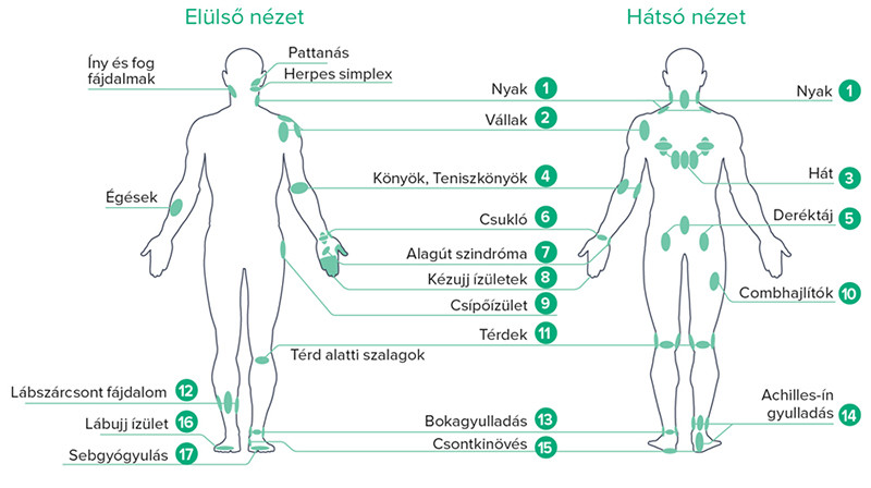 B-Cure-laser-terapia-pontok lágylézer kezelés pontok