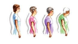 Csontritkulás, oszteoporózis