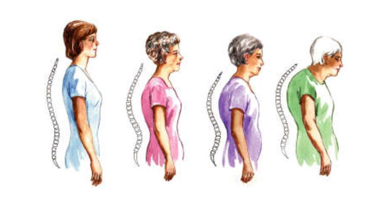 térdbursitis kezelése artrózissal kötőszöveti gyulladás varikoos