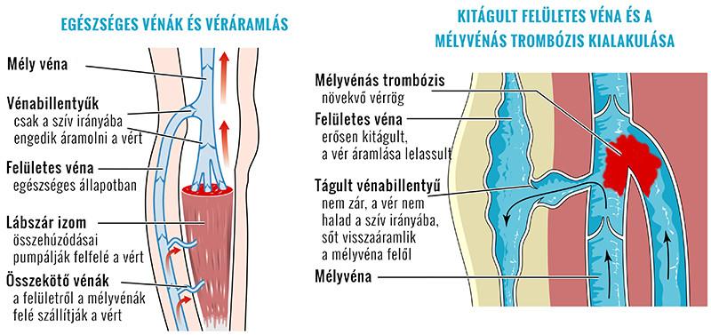 trombőzis kialakulásának folyamata