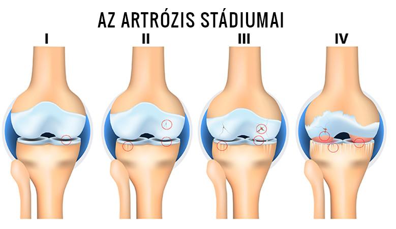 Artrózis stádiumai