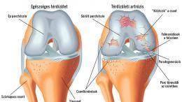 a térd artrózis