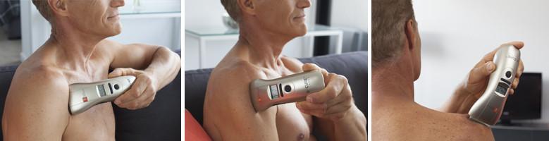 B-Cure lágylézer váll kezelése artritisz