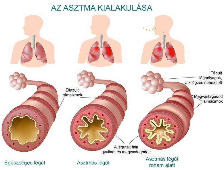Az asztma kialakulása és a légutak elváltozásai
