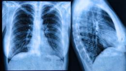 cisztás fibrózis és sóterápia