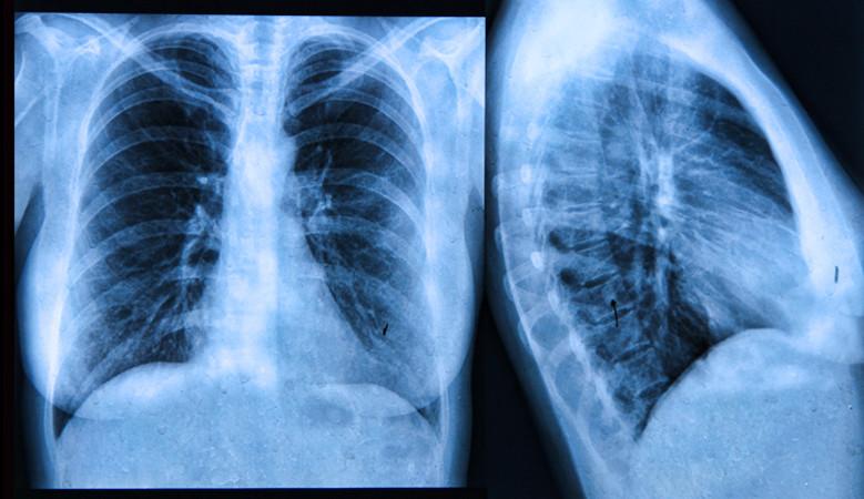 Orvosi biofizika | Digitális Tankönyvtár