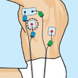elektróda pozíciók úszáshoz