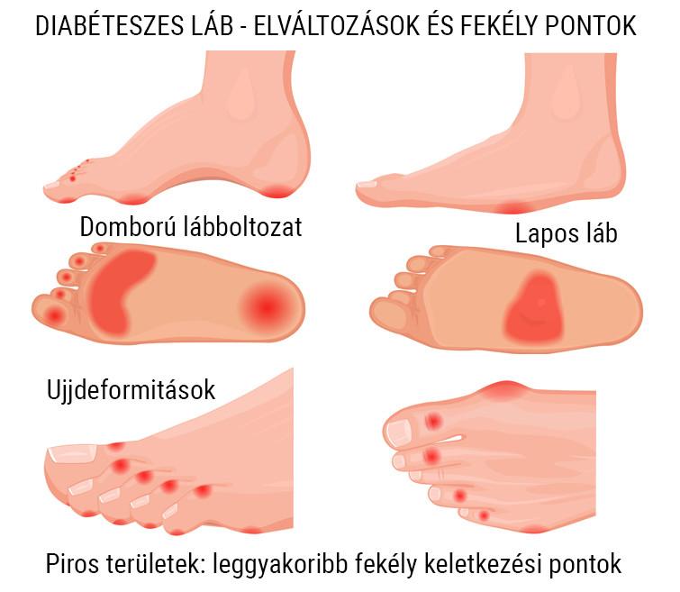 cukorbeteg Diabéteszes láb elvátlozásai és a fekélyképződés leggyakoribb pontjai
