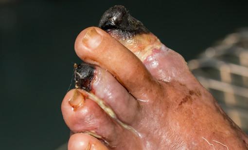 diabeteszes láb gangréna vagy szövetelhalás