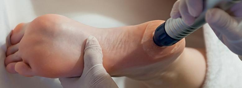ultrahang kezelés sarkantyú, azaz sarokcsont kinovés esetén
