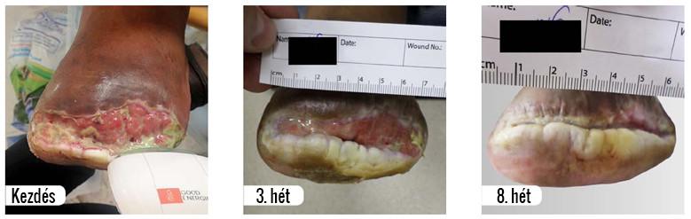 fekély kezelése b-cure lágylézer készülékkel eredménye