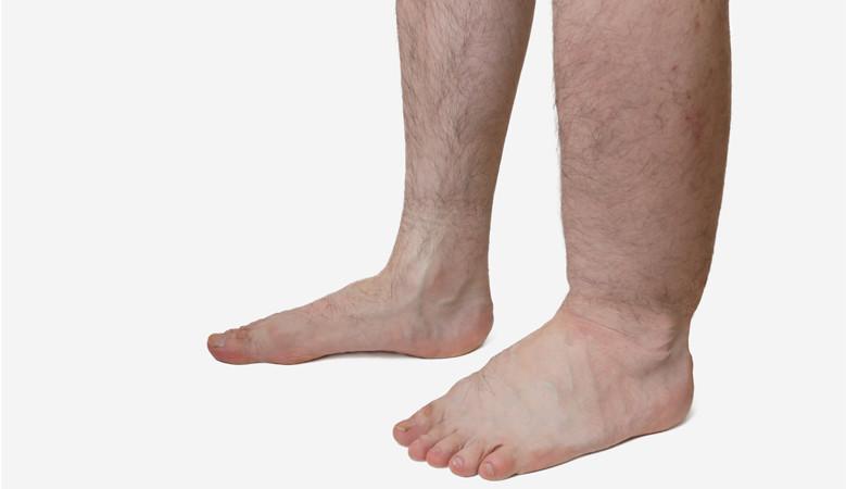 vizes vörös foltok a lábakon)