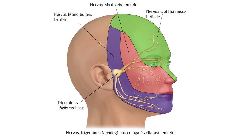 Arcideggyulladás, azaz trigeminus neuralgia