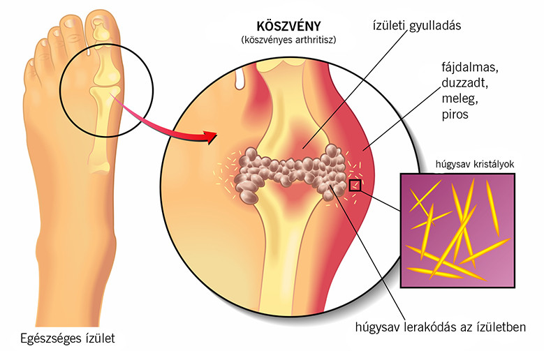 köszvény tünetei és kezelése, köszvényes arthritisz