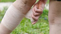 Trombózis utáni állapot otthoni kezelésének lehetőségei