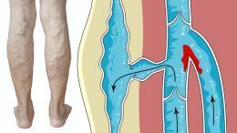 trombózis, azaz vérrög (trombus) kialakulása a vénákban