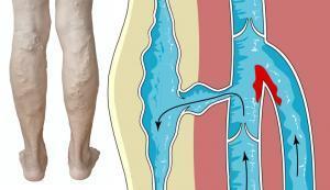 Lábfájdalom neuralgia, Porckorong eredetű fájdalom