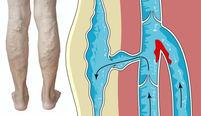 hogyan lehet elveszíteni a láb és a kar súlyát