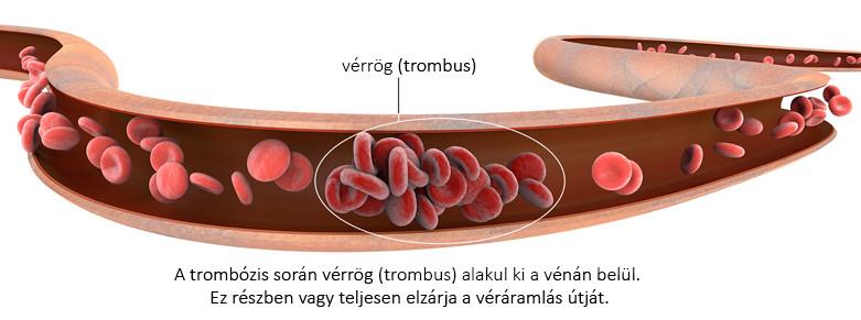 vérrög, trombus kialakulása a vénában