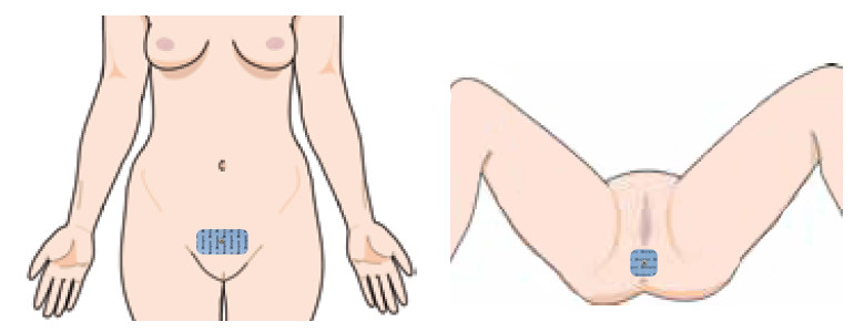 inkontinencia kezelése elektródával mons pubis - gátizom