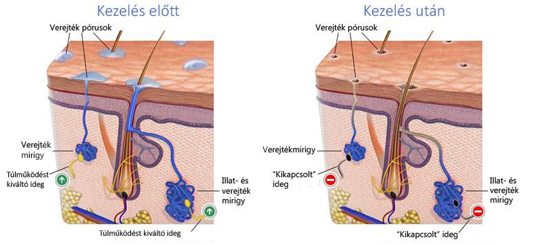 verejtékmirigyek kóros izzadás hiiperhidrosis esetén csapvíz iontoforézis kezelés előtt és után