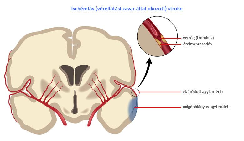 ischaemiás stroke kialakulása
