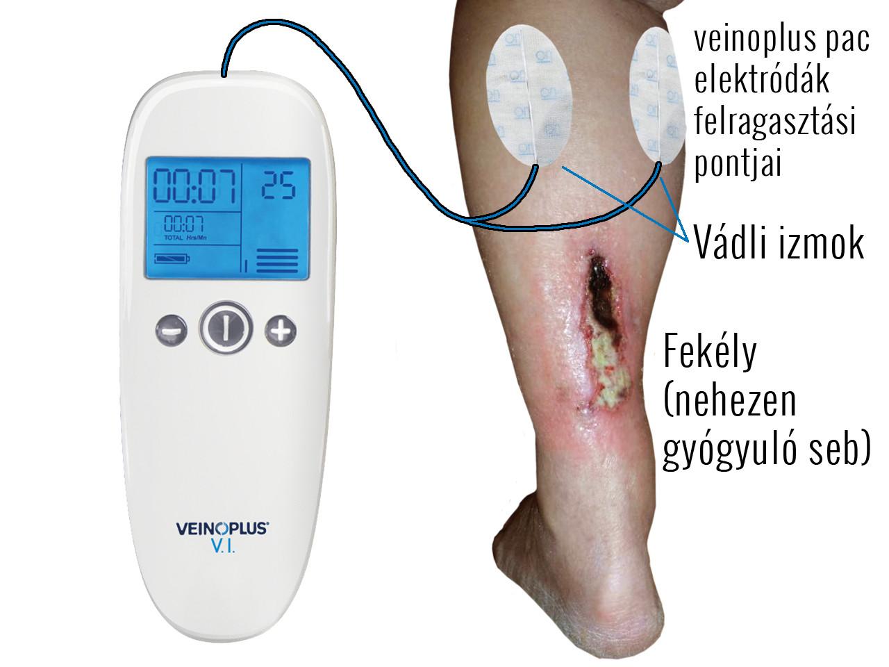 fekély kezelése veinoplus vivel