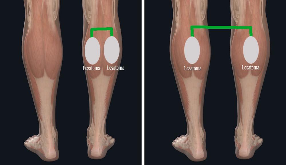 elektródák felhelyezése veinoplus Arterial, veinoplus V.I. és veinoplus DVT készülékkel végzett kezeléshez