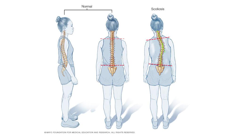 visszér a gerinc görbülete miatt