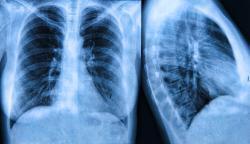 Trichomonas (?) fertőzés   nlc